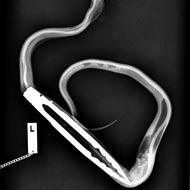 Pet python ingests BBQ tongs