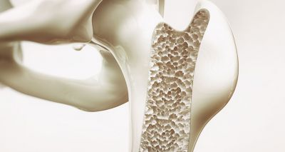 RVC study offers hope for osteoporosis sufferers